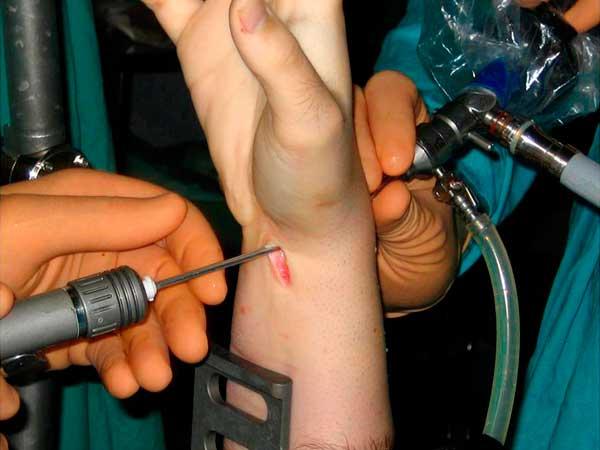 Lesión-del-ligamento-Escafolunar