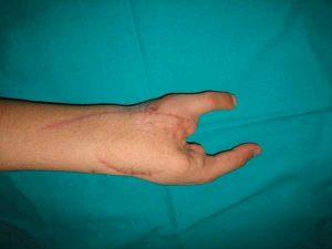Microcirugía transferencia dedo pie-mano