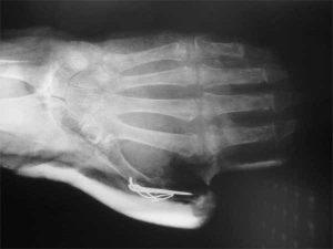 Prótesis-metacarpofalángica-Muñeca-Reumática