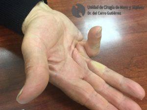 Enfermedad-de-Dupuytren. Traumatología, cirugía y lesiones de la mano