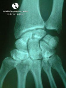 Fractura del Escafoides de la mano. Traumatología, cirugía y lesiones de la mano.