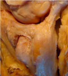 Lesión del Fibrocartílago triangular. Dr. Miguel del Cerro. Unidad de Cirugía de la mano