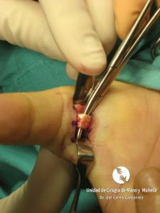 Dedo-en-Resorte. Cirugía de la mano