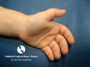 ¿A quién afecta el dedo en resorte?
