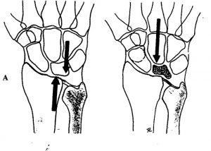Cirugía de la mano. Enfermedad de Kienböck