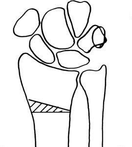 Traumatología de la mano