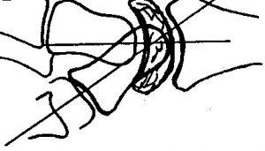 Cirugía de la mano y muñeca