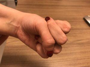 Contractura distónica de los dedos de la mano.