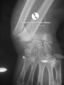 Cirugía de la mano. Fractura del Radio