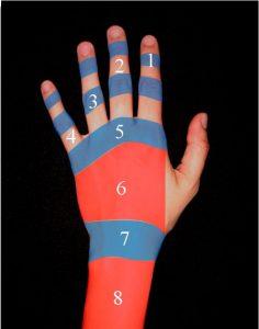 1. Lesiones de los dedos trifalángicos en función de su localización
