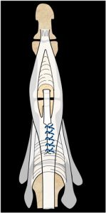Cirugía de los tendones extensores de la mano. Figura 10: plastia de Snow