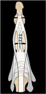plastia de Achie Cirugía de los tendones extensores de la mano