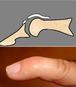 La lesión del extensor a nivel de la interfalángica distal (IFD) produce la deformidad denominada dedo en martillo