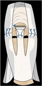 Figura 9: sutura directa en zona 3 con reinserción de la bandeleta central. Cirugía de los tendones extensores de la mano