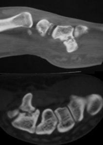 fractura de la apófisis unciforme del hueso ganchoso