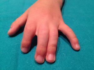 cirugía de la mano. Sindactilia