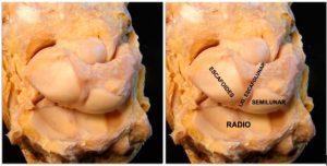Diagnóstico de la Lesión y rotura del ligamento escafolunar de la mano