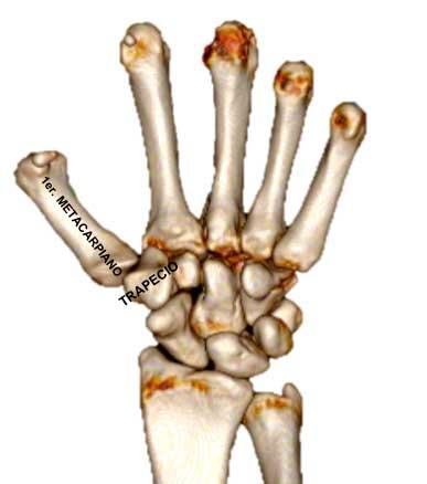 El paciente con rizartrosis suele referir dolor en la base del pulgar durante sus actividades de la vida diaria
