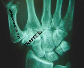 La Rizartrosis, o artrosis de la raíz del pulgar, es la lesión degenerativa más frecuente en la mano