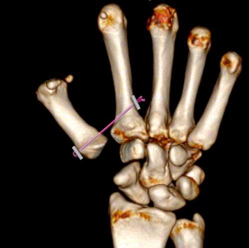 Extirpación del trapecio y colocación entre primer y segundo metacarpiano como tratamiento quirúrgico de la rizartrosis
