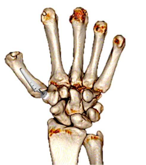 Colocación de una prótesis trapecio metacarpiana para tratar la rizartrosis de la mano